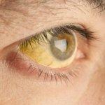 Ημερίδα για τις οφθαλμολογικές παθήσεις στην Τερψιθέα