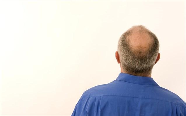 Η εμφάνιση φαλάκρας μπορεί να οφείλεται σε έλλειψη σιδήρου