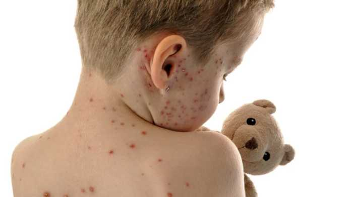 Άμεσο εμβολιασμό κατά της ιλαράς συστήνουν οι Λαρισαίοι γιατροί