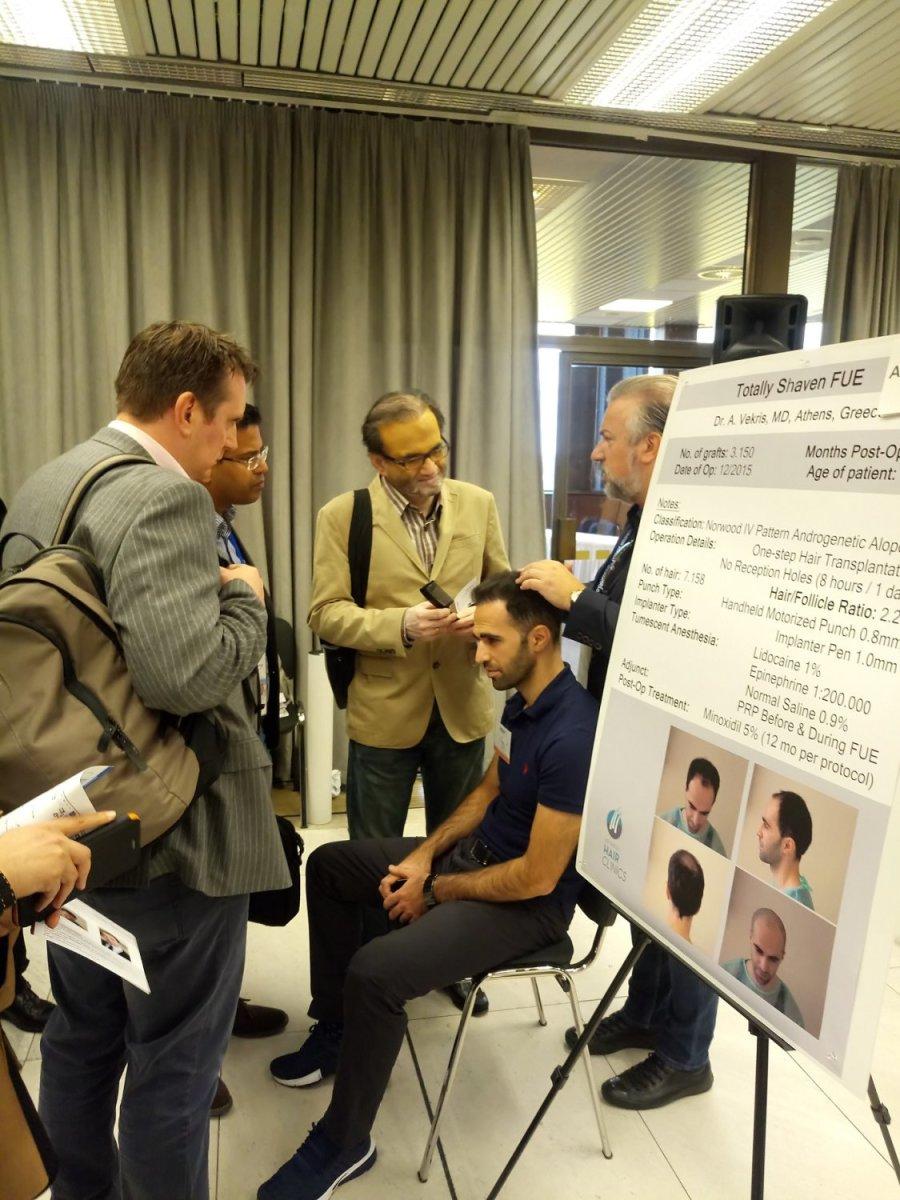 Αληθινά περιστατικά, αυθεντικά αποτελέσματα από την Advanced Hair Clinics, με την υπογραφή της ISHRS
