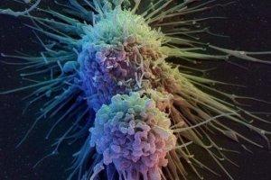 Νέα ισχυρότερη ανοσοθεραπεία κατά του καρκίνου