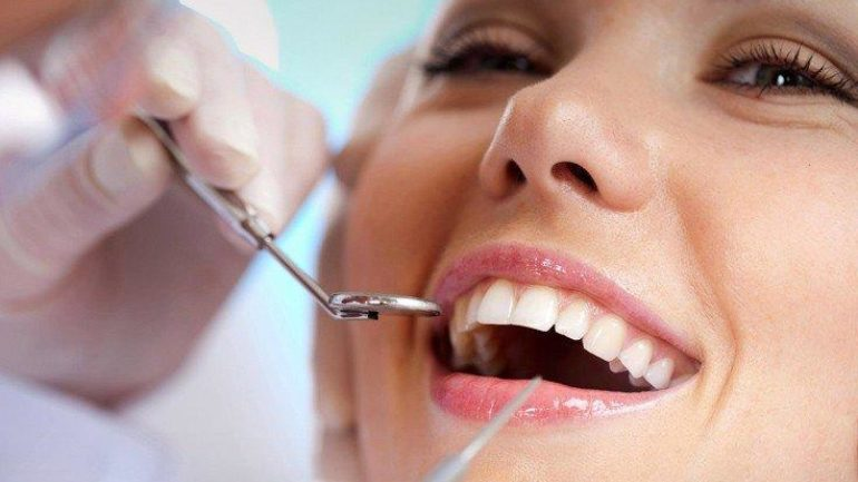 Κατάχρηση με τη λεύκανση των δοντιών κάνουν οι Έλληνες