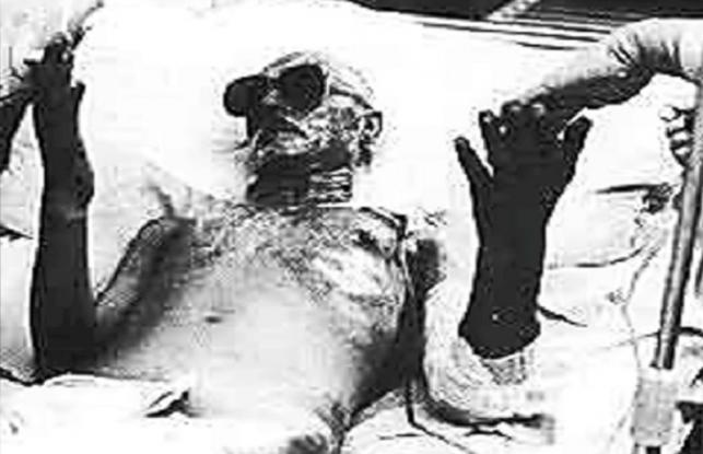 Όταν άνοιξαν οι πύλες της κολάσεως στο Τσέρνομπιλ – Οι άγνωστοι ήρωες που έλιωσαν ζωντανοί από τη ραδιενέργεια