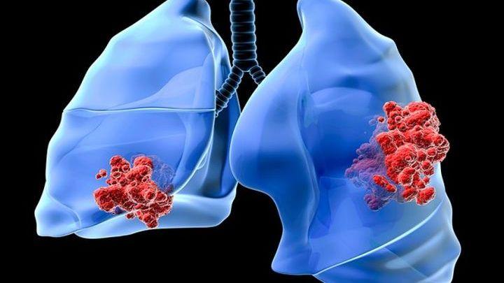 Ο καρκίνος του πνεύμονα. Γράφει ο Ελευθέριος Β. Χαλβατζούλης